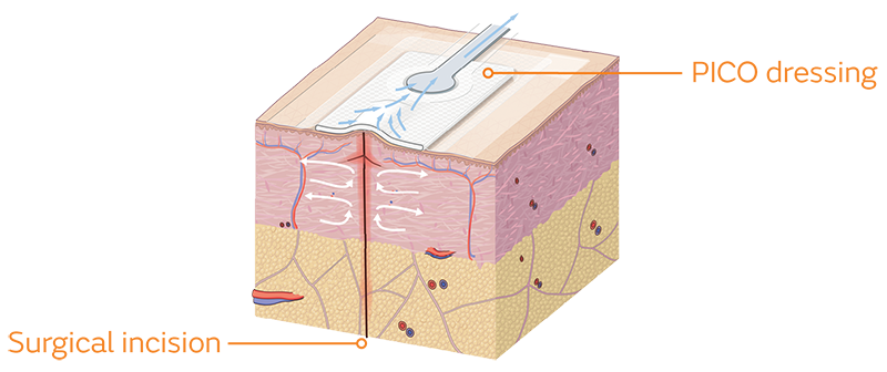PICO dressing and incision cross section